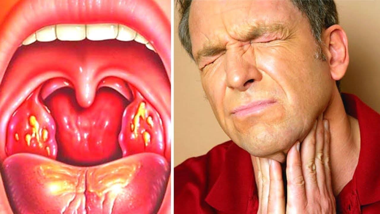Методы лечения тонзиллита