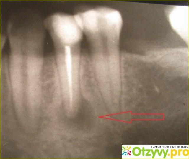 4 лучших метода лечения гранулемы зуба
