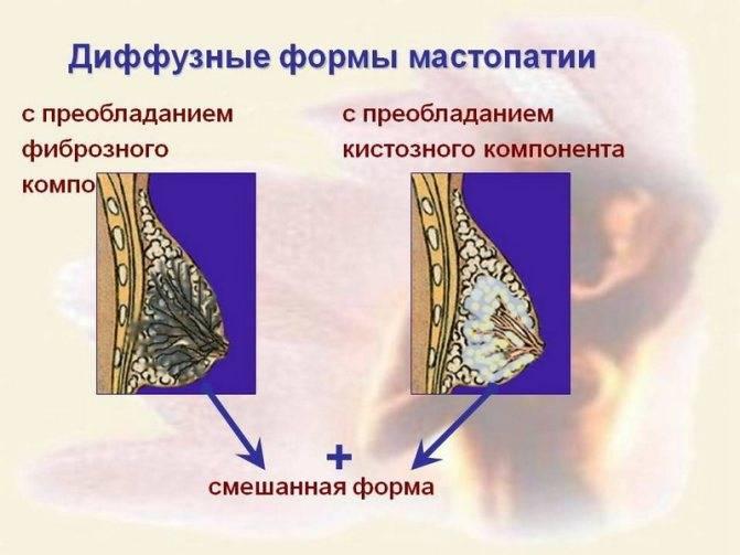 Особенности лечения диффузной фиброзно-кистозной мастопатии груди