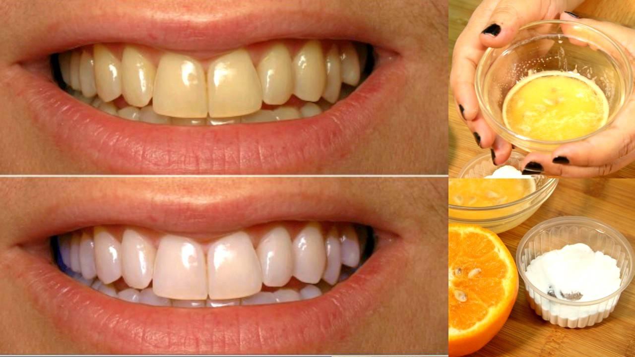 Как провести отбеливание зубов народными средствами — список популярных рецептов
