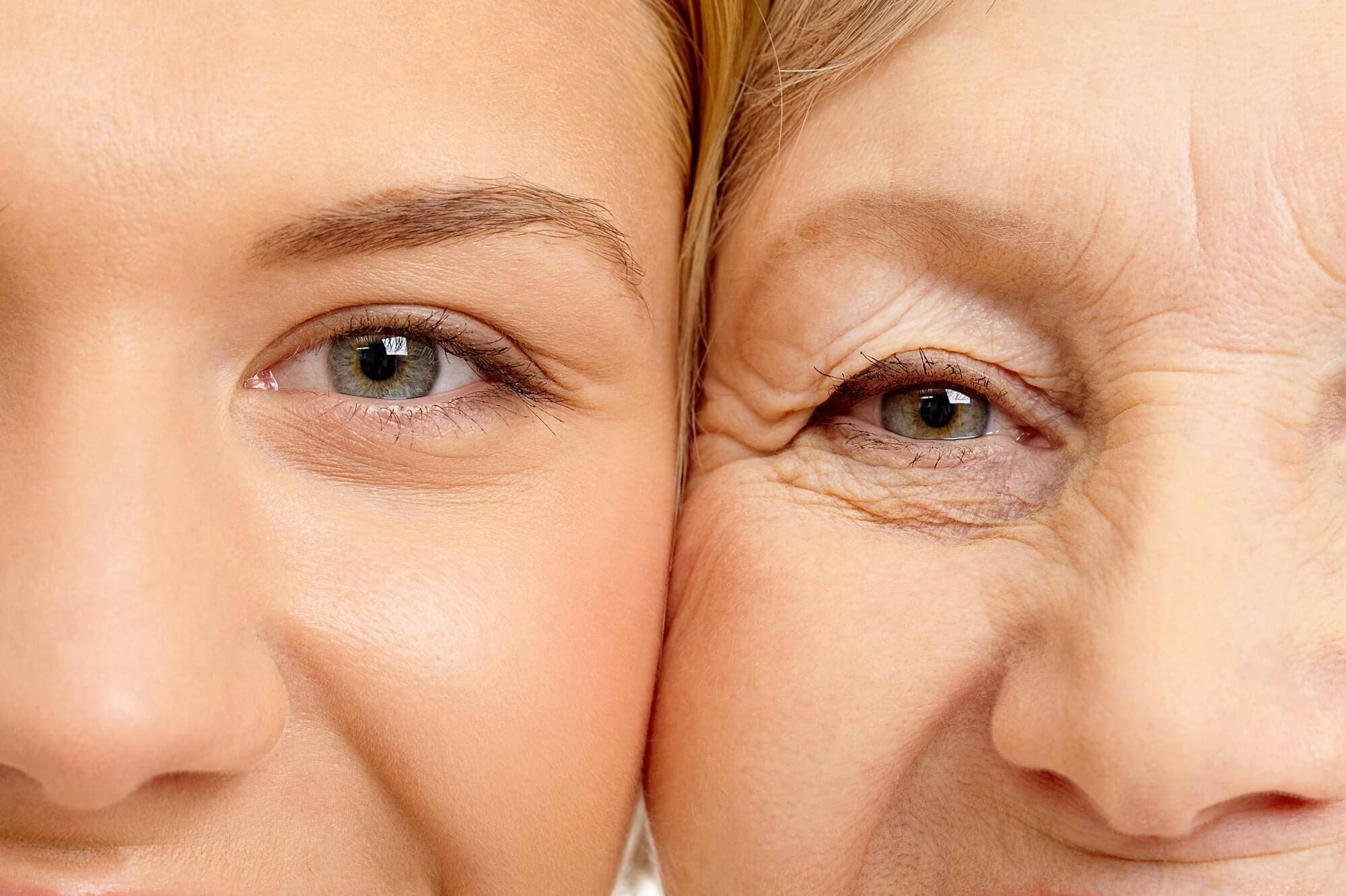 Кожа под глазами стала дряблой причины, как подтянуть, эффективные средства