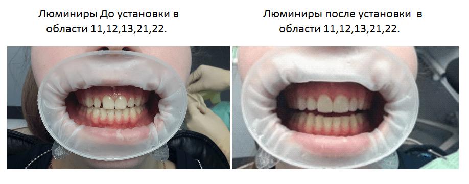 Установка люминиров на передние зубы: плюсы и минусы, фото до и после процедуры