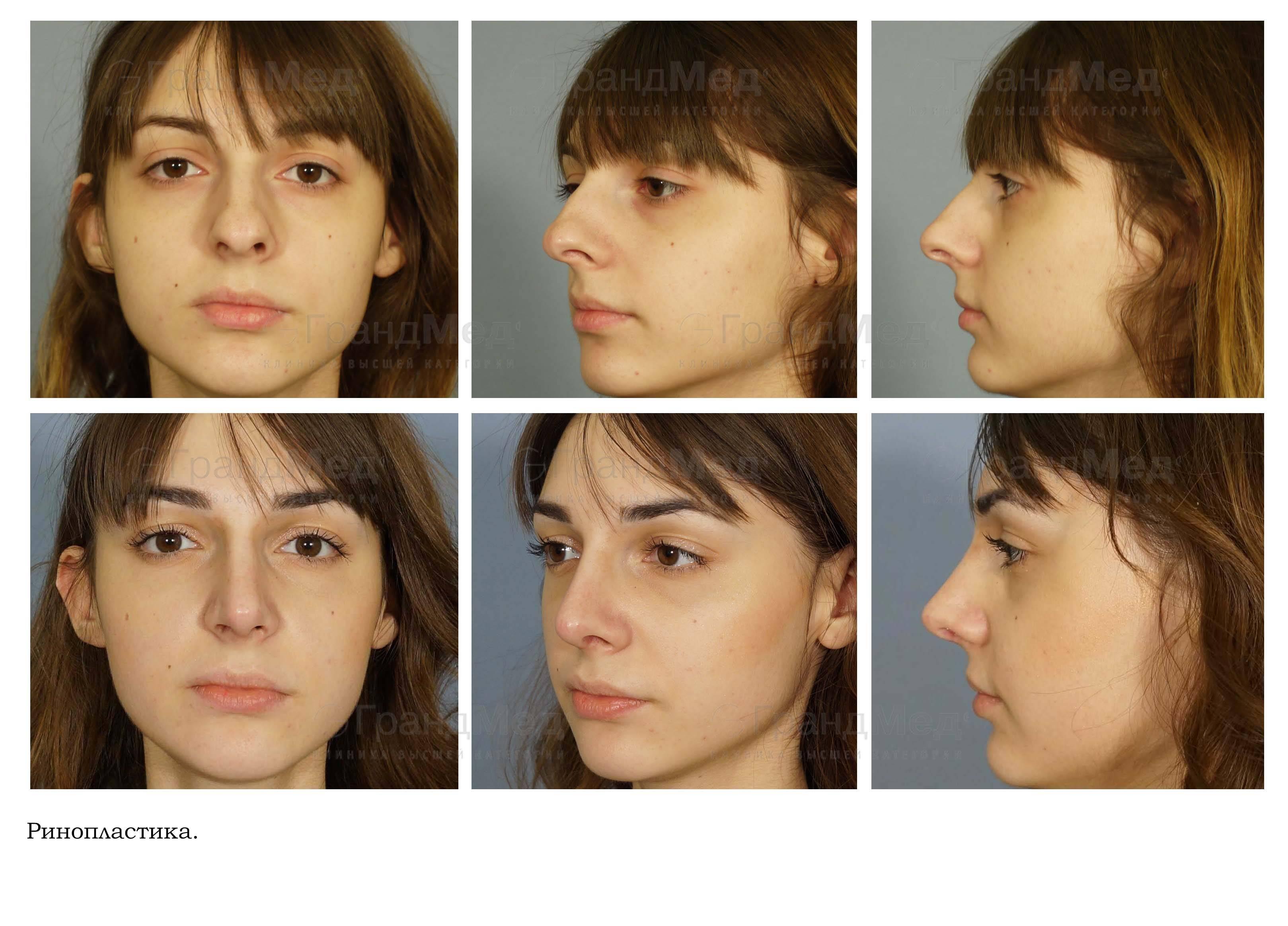 Ринопластика (операция на нос) в иране: всё, что вы должны знать