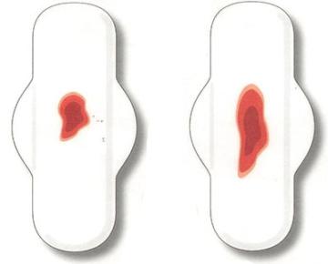 Сколько крови в норме теряется во время месячных