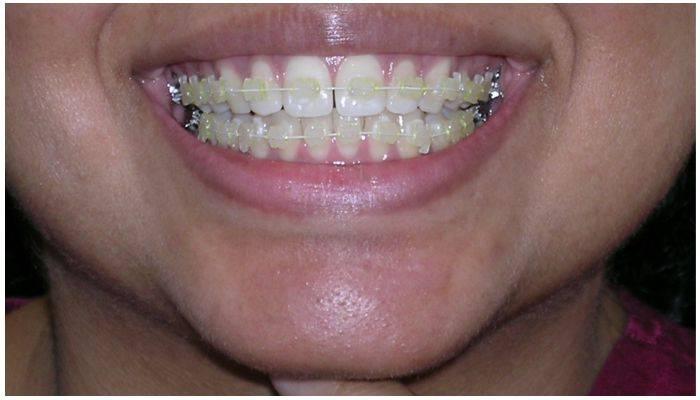 Брекеты на верхнюю челюсть — как устанавливают корректирующую систему на зубы?