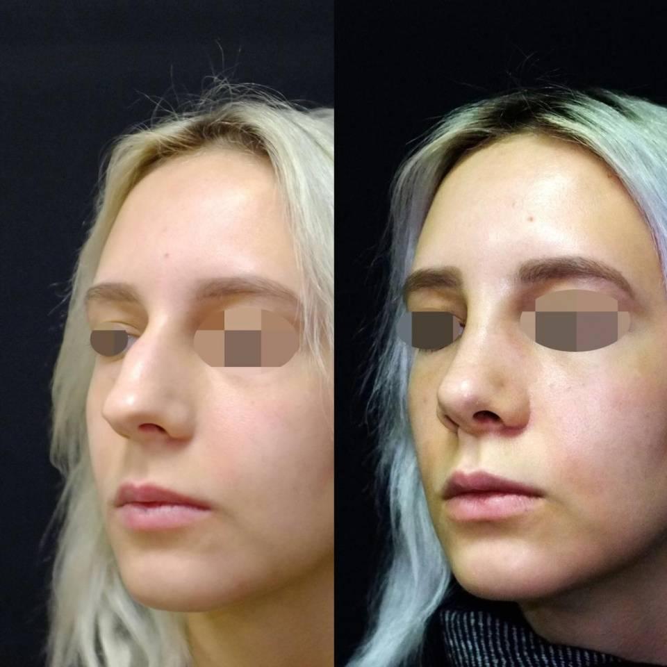 Резекция носовой перегородки: как проходит операция