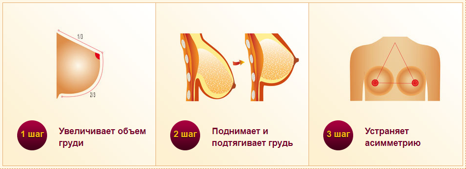 Тейп-схемы. лифтинг коррекция груди