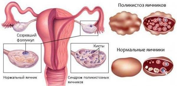 Применение метформина при синдроме поликистозных яичников (спкя)
