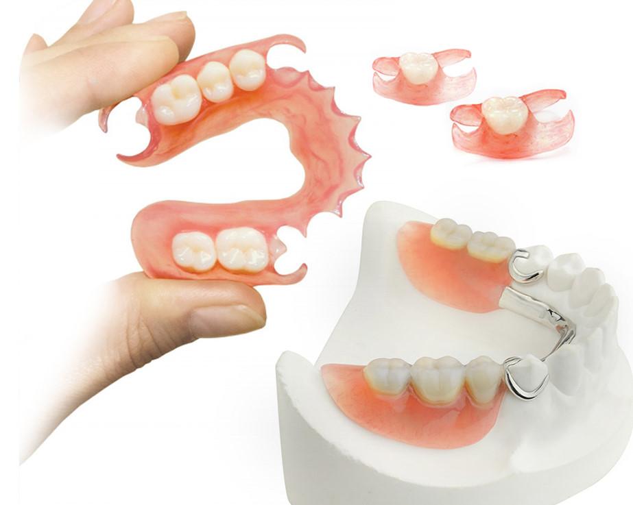 6 ответов на самые важные вопросы о пластиковых зубных протезах