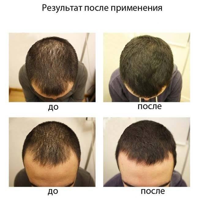 Выпадение волос при климаксе, лечение и восстановление