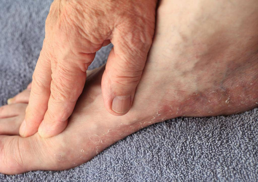 Основные причины и способы лечения трещин на стопах
