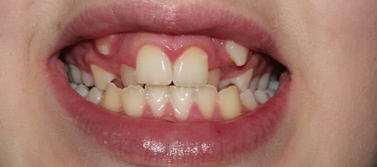 Сложное и атипичное удаление зубов мудрости: этапы реабилитации