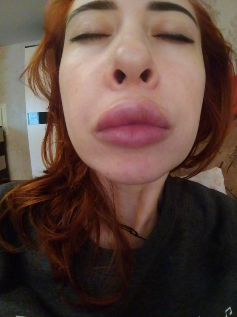 После увеличения губ появились шарики — какие могут быть причины?