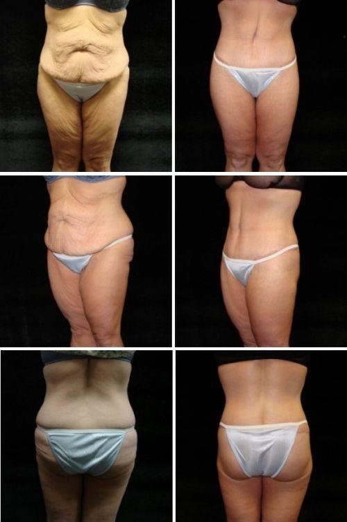 Контурная пластика тела – как пластическая хирургия сделает торс красивым