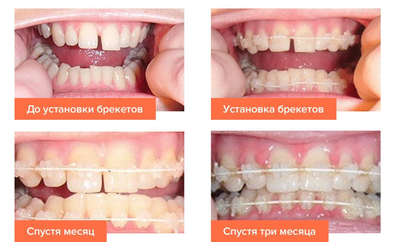 Сколько носить брекеты чтобы зубы были идеальными?