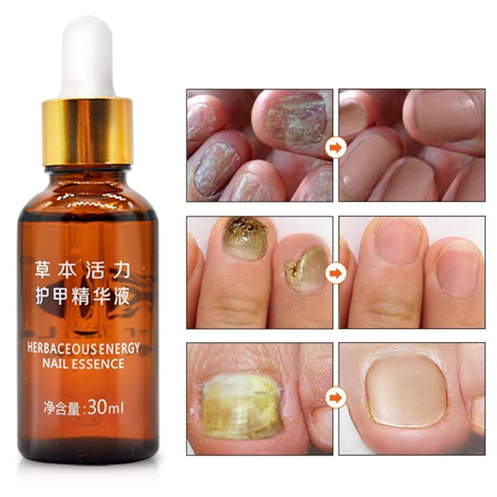 Эфирные масла для рук и ногтей — секреты эффективного ухода
