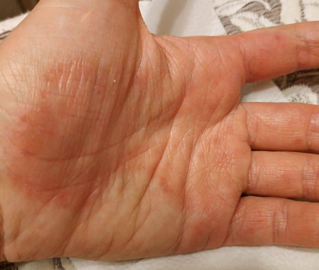 Сухая кожа на пальцах рук
