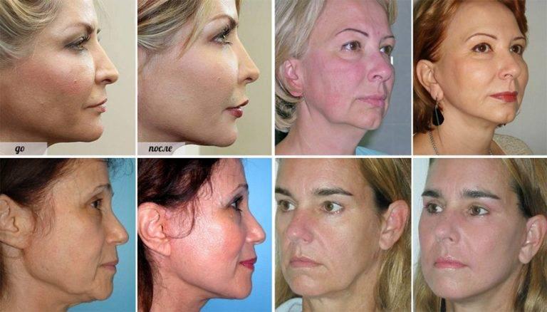 Лазерная шлифовка лица для нового сияния кожи