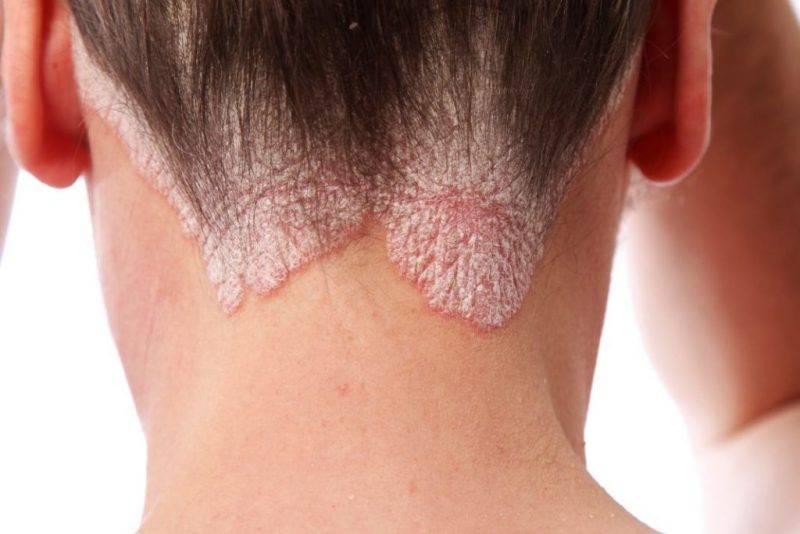 Начальная стадия лишая: симптомы, признаки, первая помощь и уход за кожей. 125 фото болезни и варианты лечения