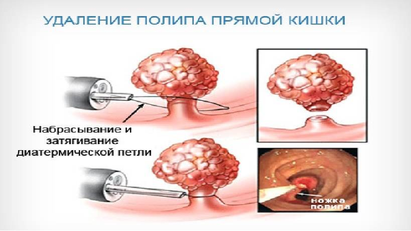 Симптомы злокачественного полипа в кишечнике