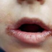 Чем лечить заеды в уголках губ