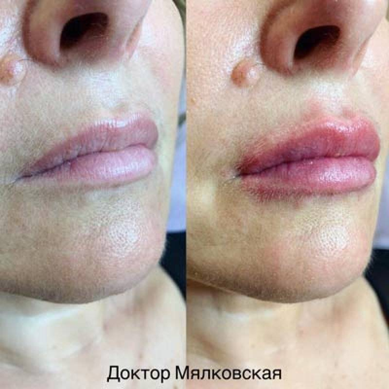 Увеличение губ гиалуроновой кислотой: как все сделать правильно