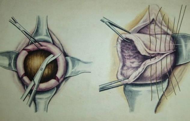 Как обрабатывать внутренние и наружные швы после родов
