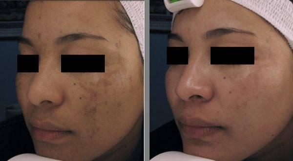 Лазерное удаление пигментных пятен – лучший метод осветление кожи