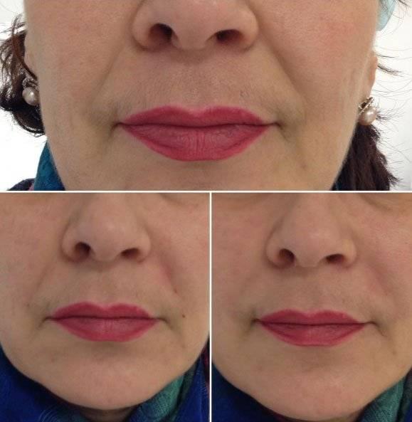 Что такое ботокс губ, какие у этой процедуры бывают результаты и побочные эффекты: фото до и после