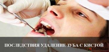 Новости и статьи в рубрике «хирургия»