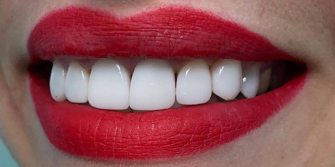 Композитные виниры без обточки зубов. минусы, плюсы, как ставят, цена