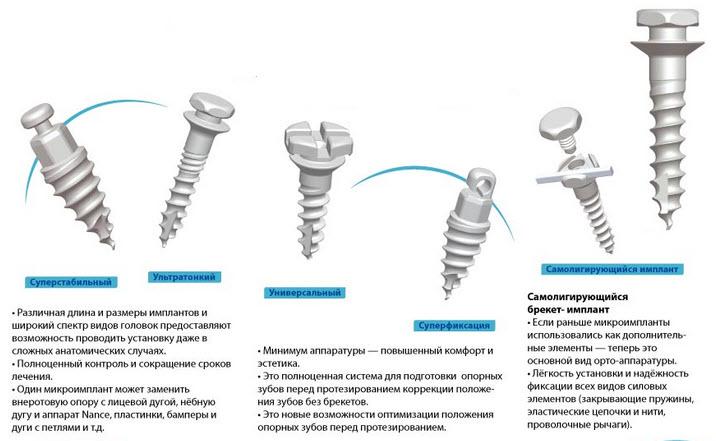 Комплексная реставрация прикуса и протезирование зубов