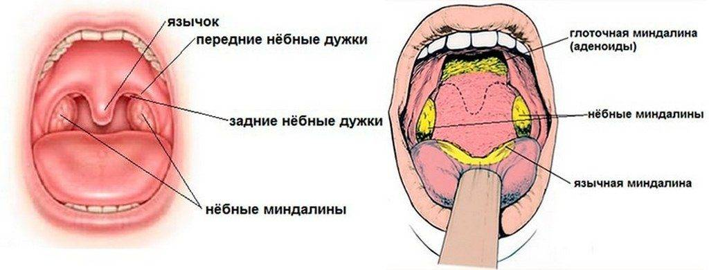 Пупырышки в горле: причины, симптомы, лечение и рекомендации специалистов