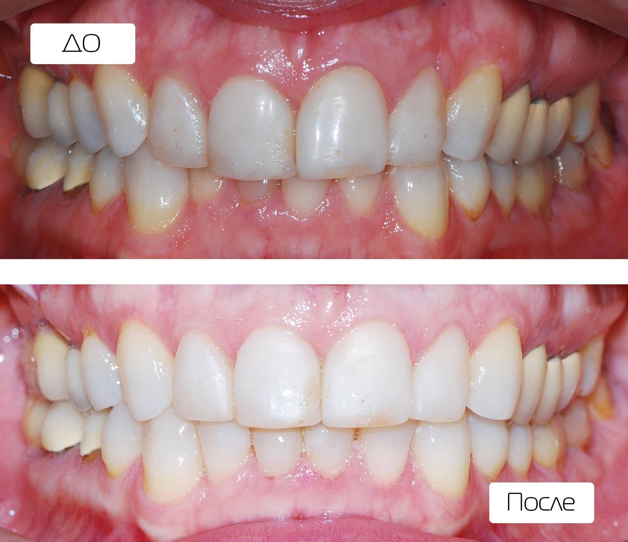 Можно ли ставить брекеты на нарощенные зубы