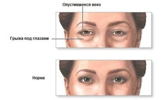 Грыжа под глазами: суть проблемы, причины, как убрать у хирурга и без операции
