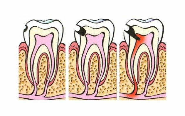 Периодонтит временных зубов у детей. консервативное лечение.