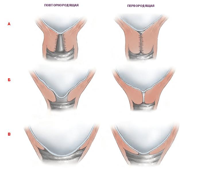 Шейка матки при беременности на ранних сроках: положение, состояние, раскрытие