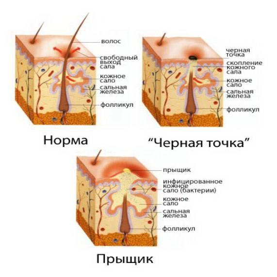 Народные приметы о прыщах на лице и теле