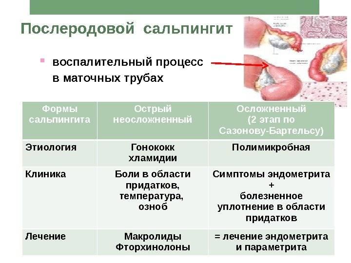 Послеродовой эндометрит: всё о заболевании