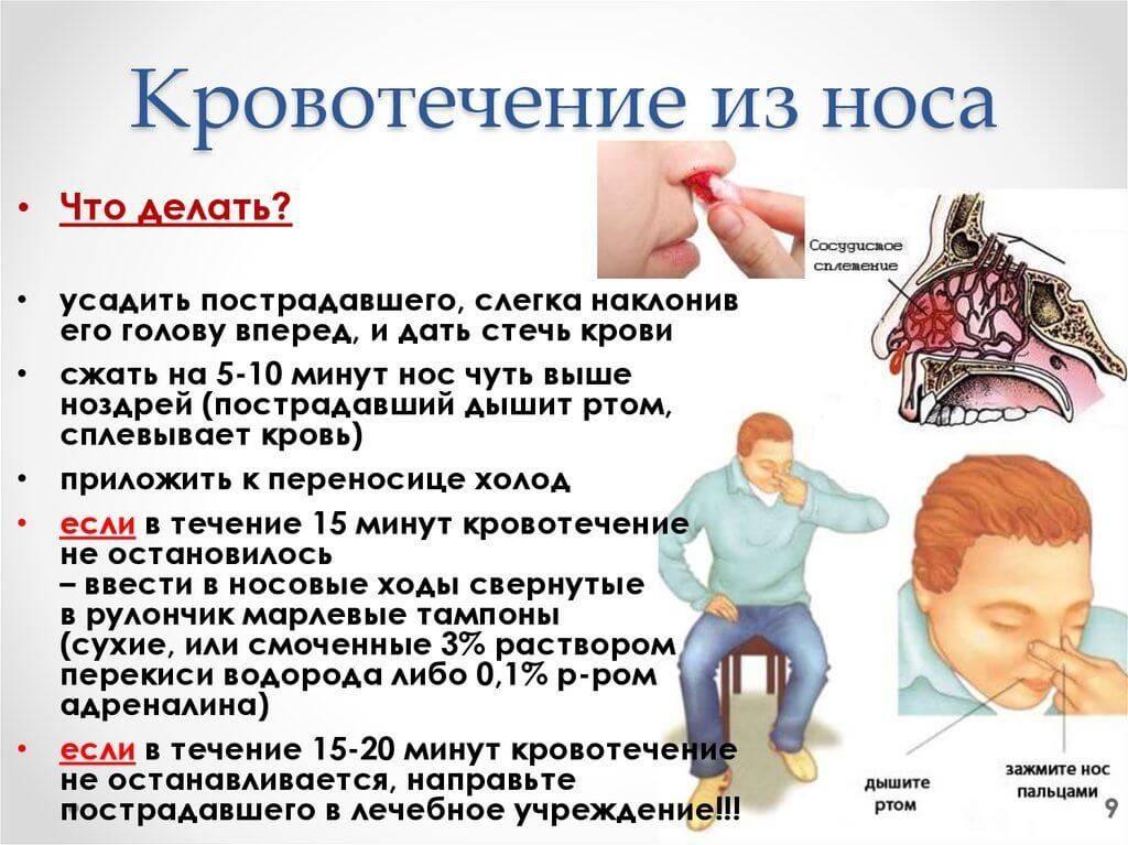Кровь не останавливается: что делать, почему так происходит и рекомендации врачей