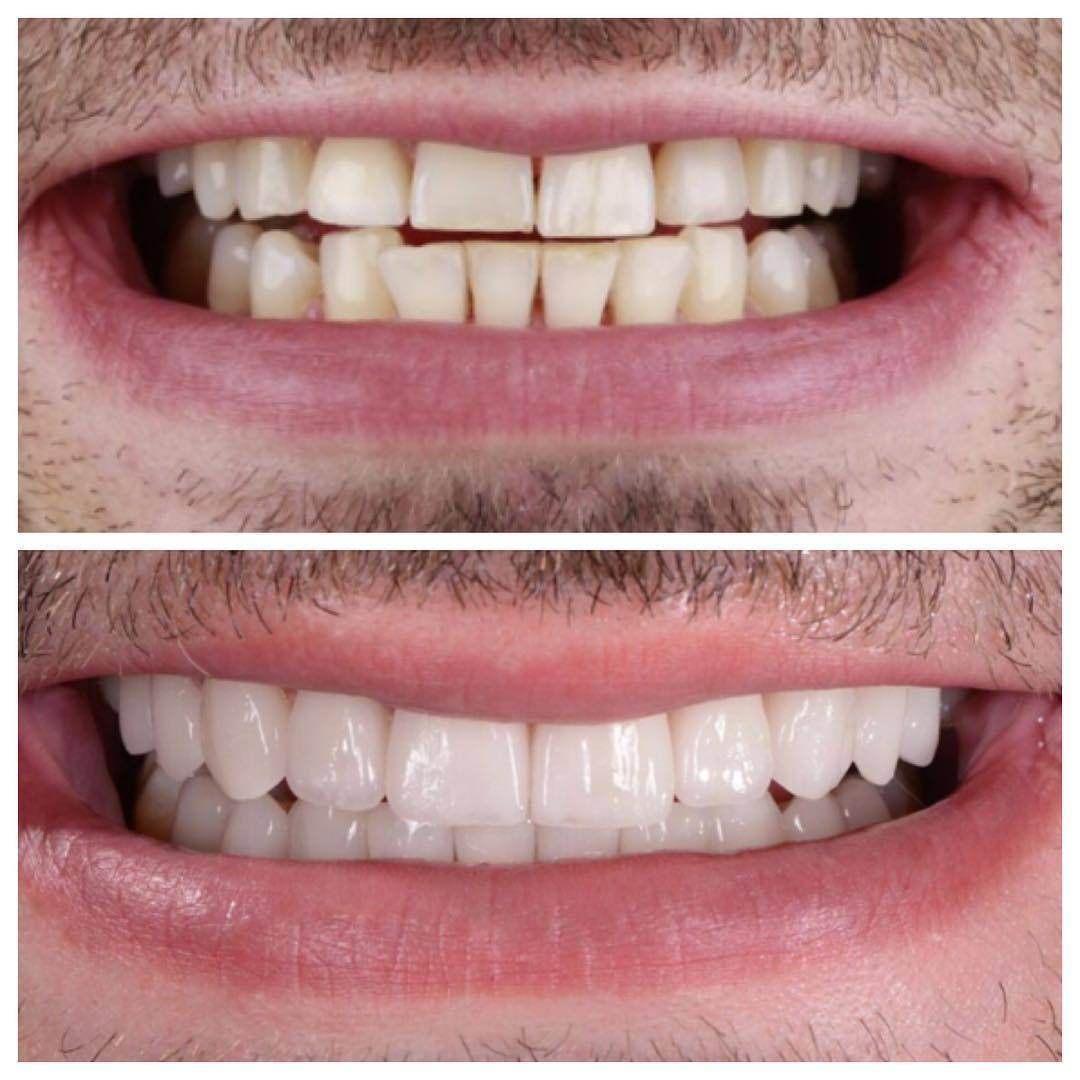 Люминиры: цена за 1 зуб в москве