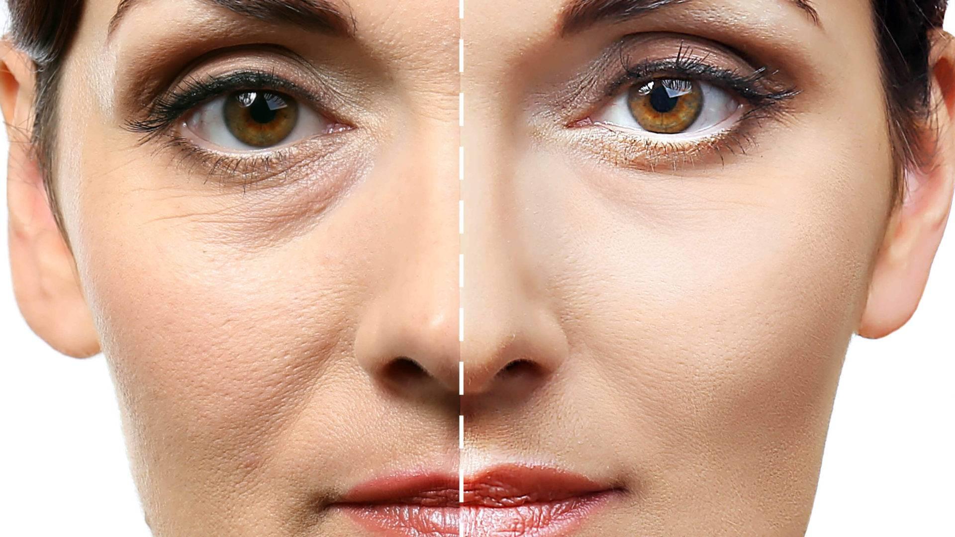 Тонкая кожа - причины истончения кожи. тонкая кожа на лице и под глазами: правильный уход и укрепление