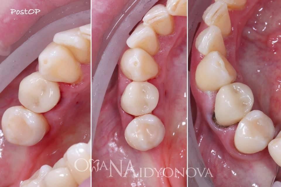 Штифт в зубе болит при нажатии