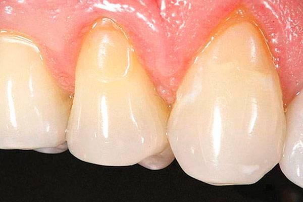 Пришеечный кариес: коварный и незаметный разрушитель зубов