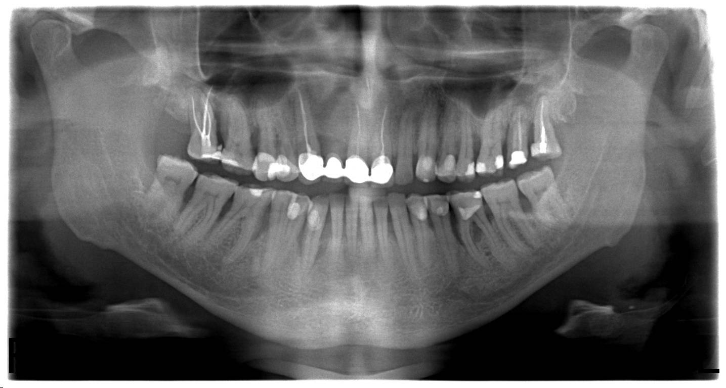 Новости и статьи в рубрике «стоматология»