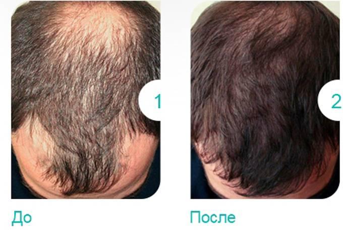 Выпадение волос у женщин при климаксе – причины и лечение