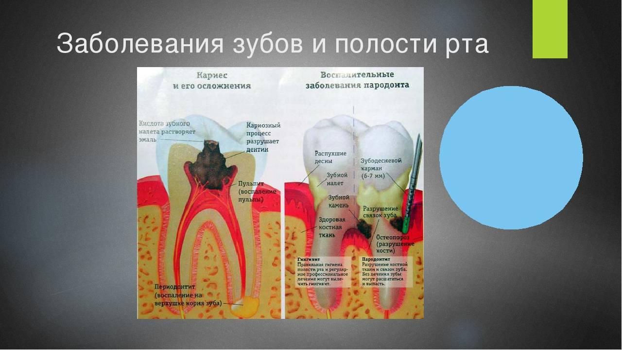 Болезни зубов и десен: причины, фото и названия у взрослых и детей