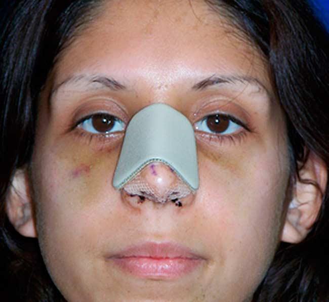 Септопластика: почему не дышит нос?
