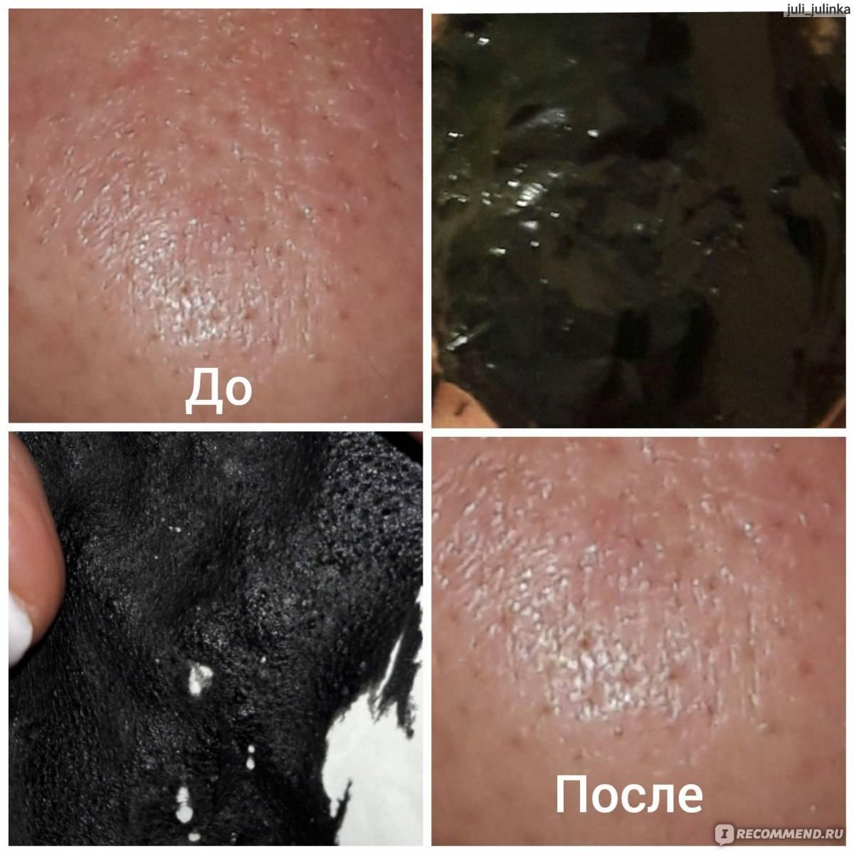 Желатин для лица: как влияет на кожу, как развести, сколько держать