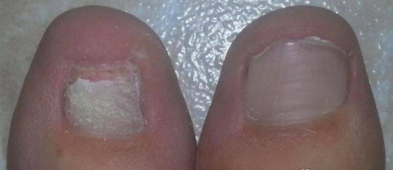 Удаление ногтевой пластины на ноге: показания, способы удаления, лечение после операции